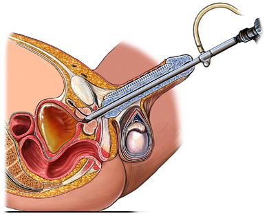 biopsia-reseccion_transuretral_de_prostata