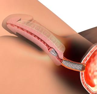 cirugia uretra